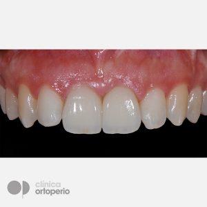 Caso-Multidisciplinar_Implantes-Estéticos-4