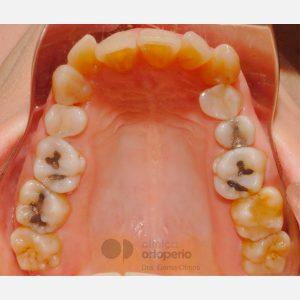 Clase-II,-extracciones,-microimplantes,-Implantes