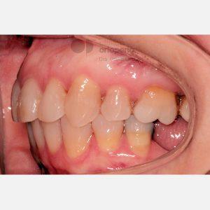 Clase-II,-extracciones,-microimplantes,-Implantes-----
