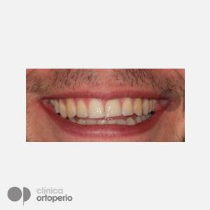 Ortodoncia-Lingual-despues