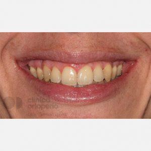 Ortodoncia-Lingual.-Clase-III,-Mordida-Abierta,-Apiñamiento-severo,-Extracciones.-despues