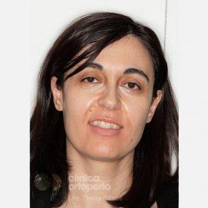 Ortodoncia-Lingual.-Clase-III,-Mordida-Abierta,-Apiñamiento-severo,-sin-Extracciones.--antes