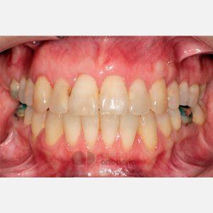 Ortodoncia Lingual. Mordida abierta, apiñamiento severo. Injerto encía. 12