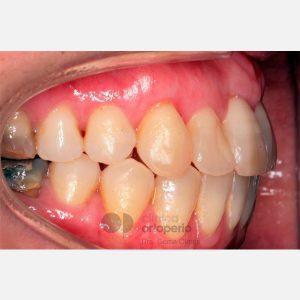 Ortodoncia Lingual. Mordida abierta, apiñamiento severo. Injerto encía. 8