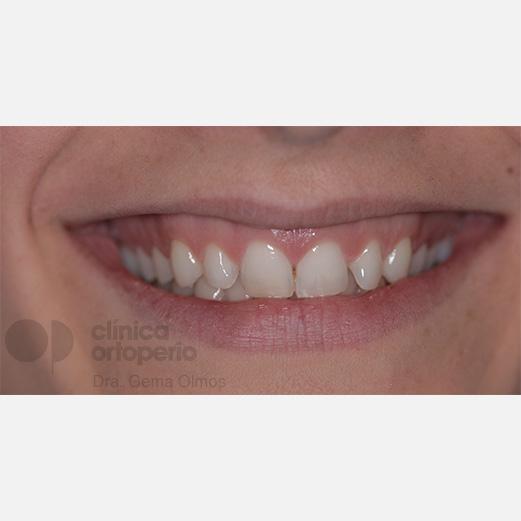 ¿Qué es una sonrisa gingival? 1