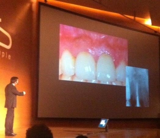"""""""Regeneración Ósea 3D"""": Conferencia del Dr. González en el Simposio de Implantología en Granada 1"""
