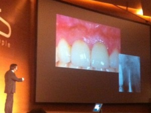 """""""Regeneración Ósea 3D"""": Conferencia del Dr. González en el Simposio de Implantología en Granada"""