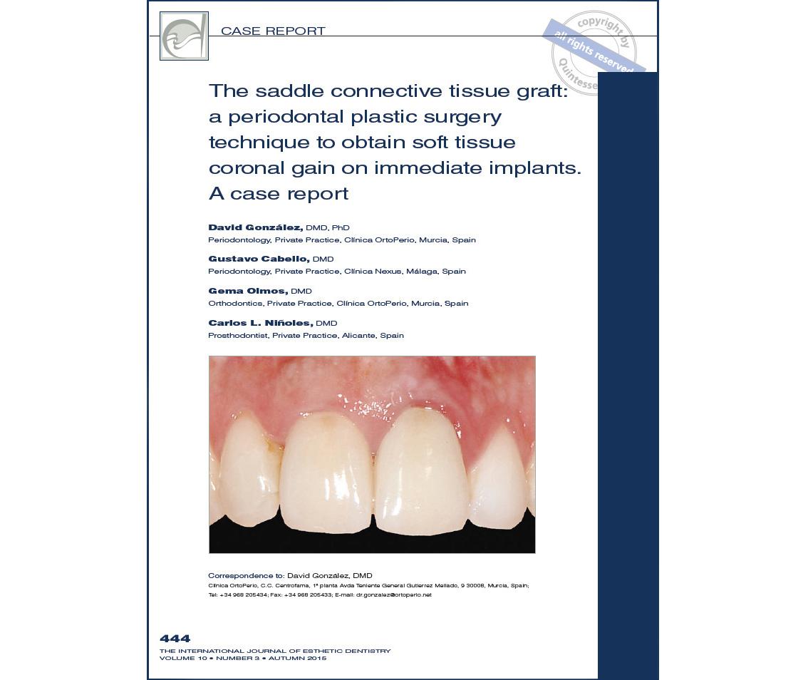Implantes dentales: Nueva Publicación internacional del Dr. David González y cols. Clínica Ortoperio 2