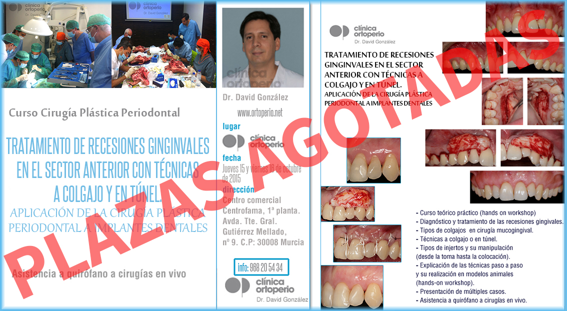Curso de Cirugía Plástica Periodontal. Plazas agotadas 1
