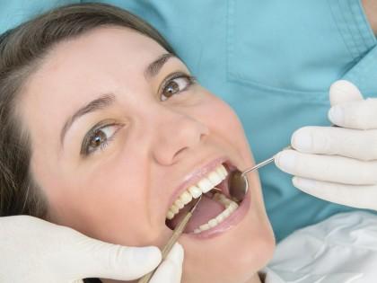 Limpieza dental ¿sabes la importancia que tiene?