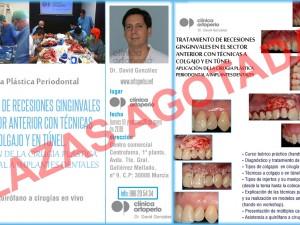 Plazas agotadas para el curso de Cirugía Plástica Periodontal