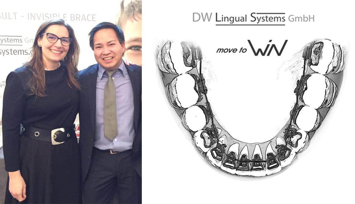 Ortodoncia Lingual: II Reunión Internacional de usuarios del sistema WIN 1