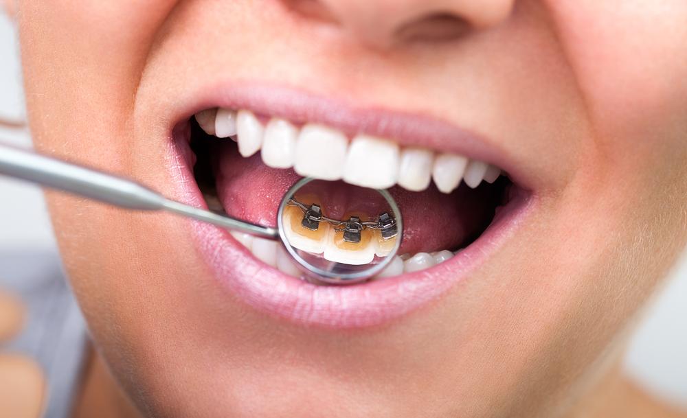 Ortodoncia sin extracciones 2