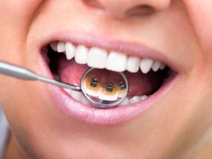 Vídeos sobre ortodoncia lingual