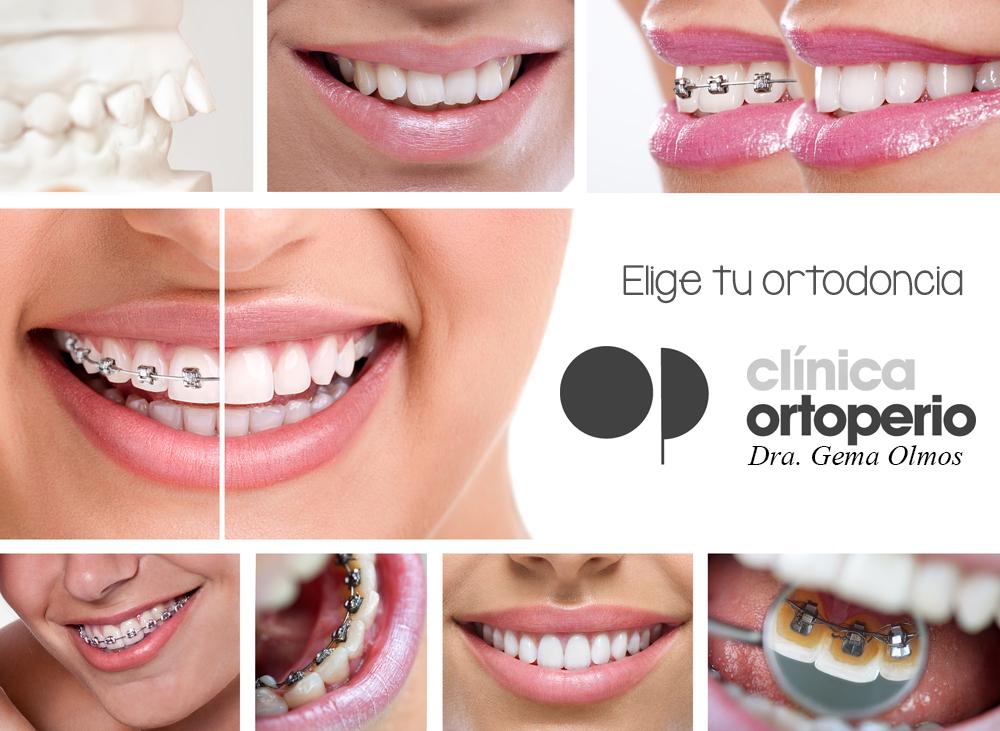 Tipos de Ortodoncia. ¿Cuál es la mía? 1