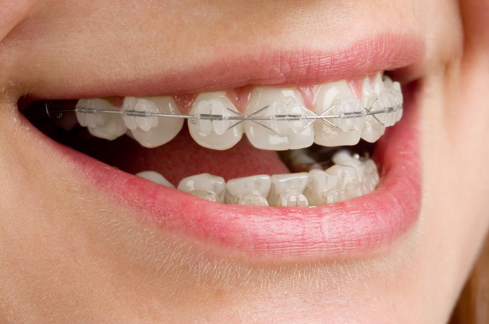 tipos de ortodoncia brackets de zafiro transparentes