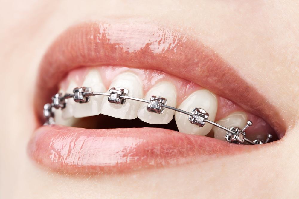tipos de ortodoncia damon