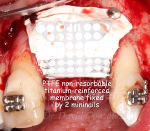 8 fijación membrana vestibular