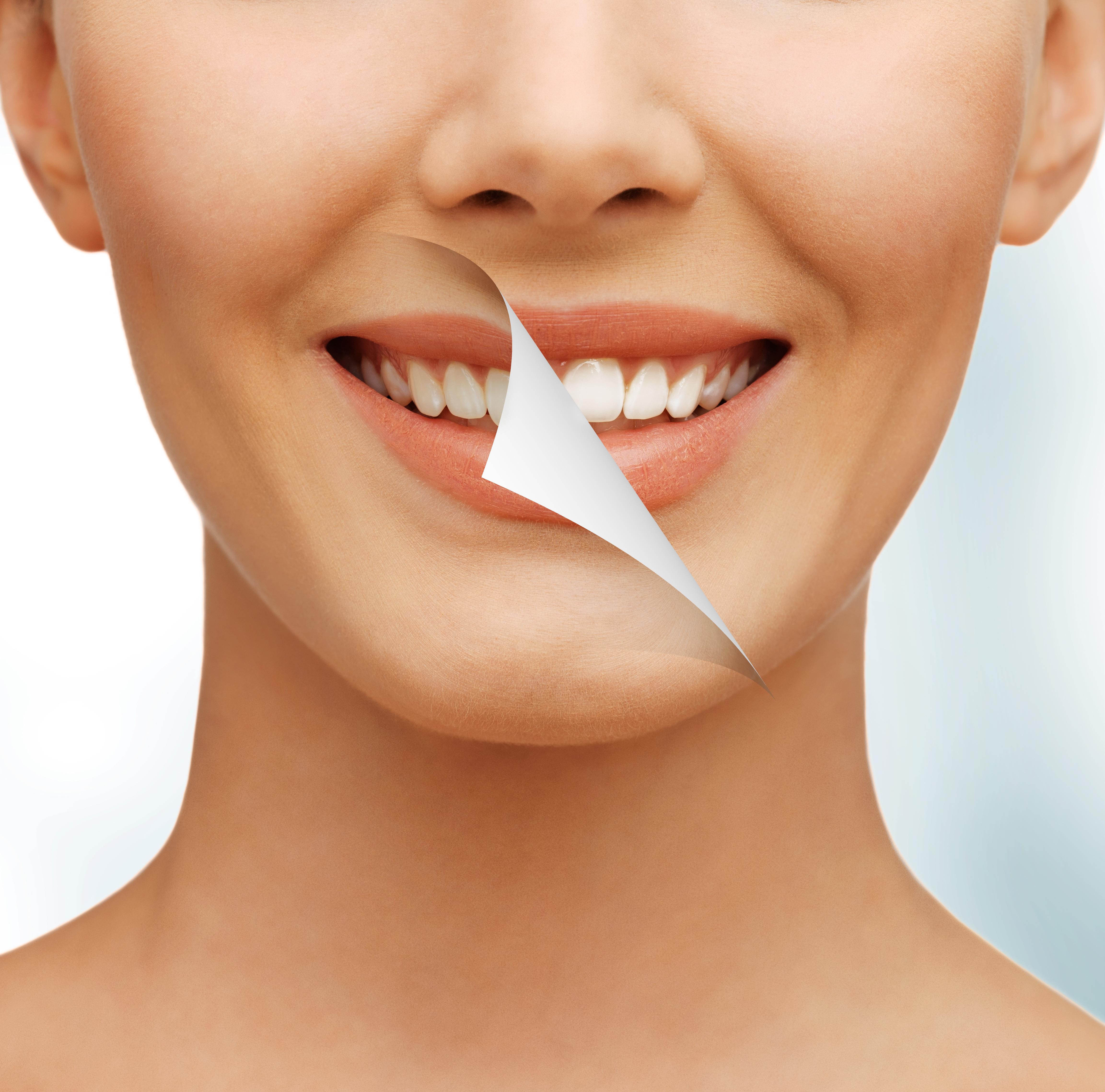 Radiología 3D e Implantes dentales en Murcia 5