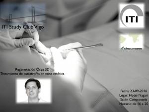 El Dr. David González impartiendo conocimientos de ROG 3D en el ITI Study Club de Vigo