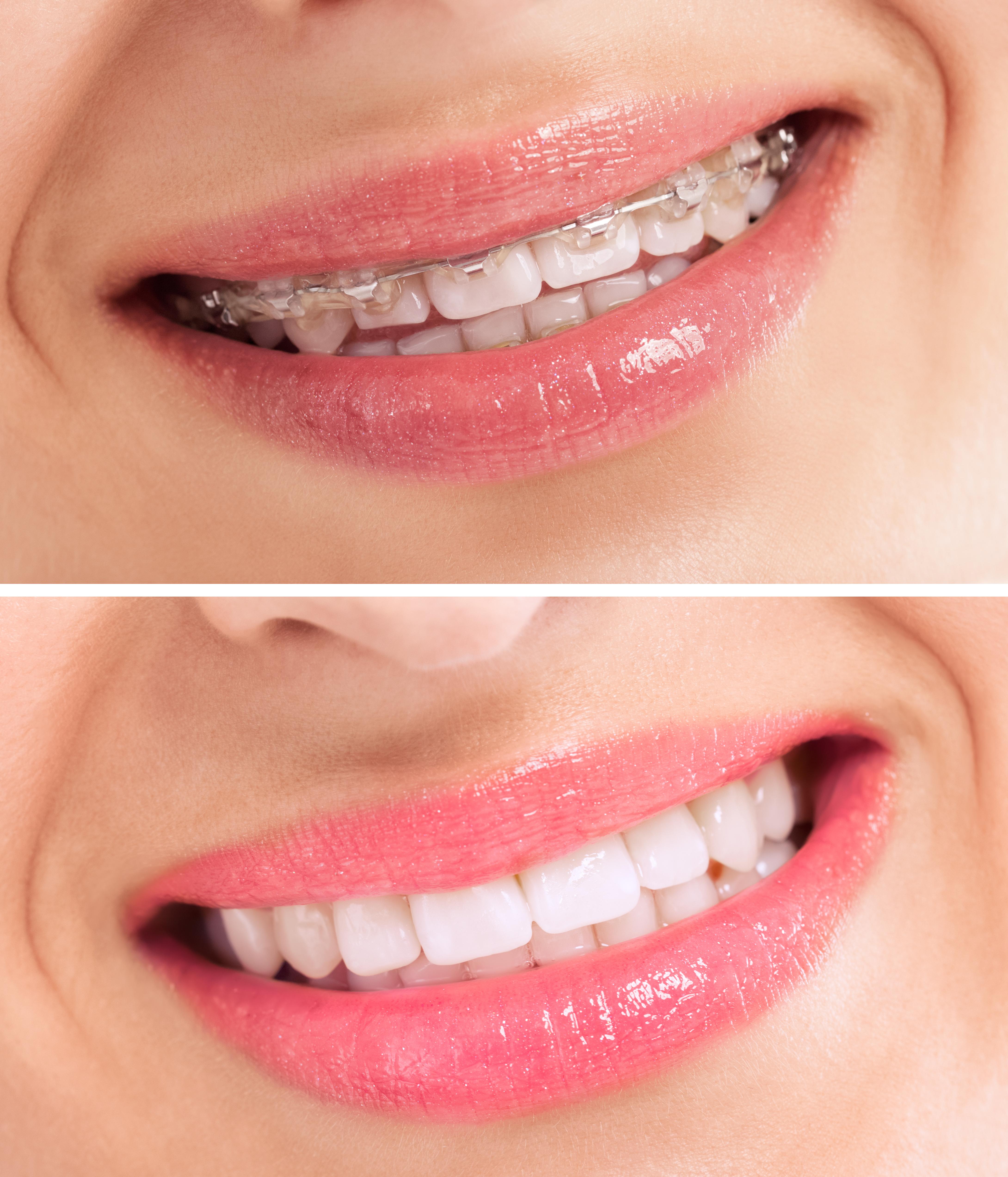 Ortodoncia sin extracciones 6