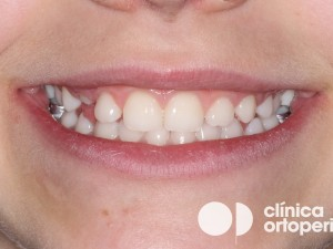 Ortodoncia infantil en Murcia