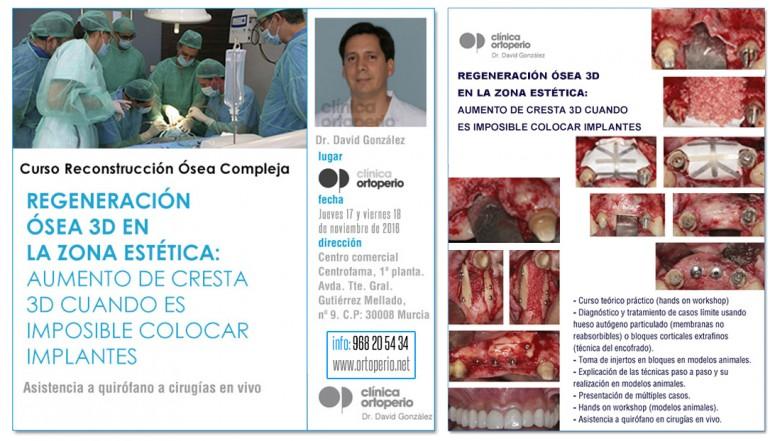 Curso de Regeneración Ósea 3D impartido por el Dr David González 2