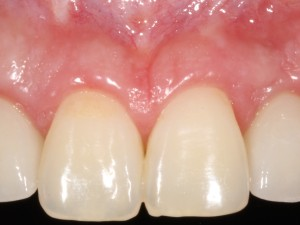 Radiología 3D e Implantes dentales en Murcia