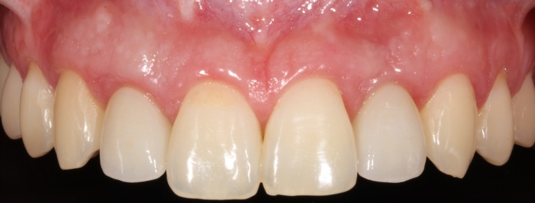 Radiología 3D e Implantes dentales en Murcia 1
