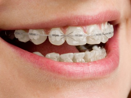 ¿Ortodoncia barata u ortodoncia eficaz?