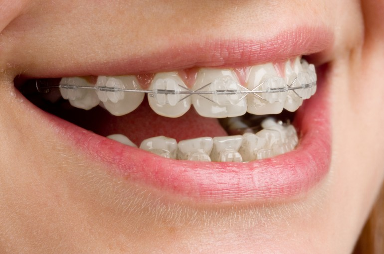 ¿Ortodoncia barata u ortodoncia eficaz? 5