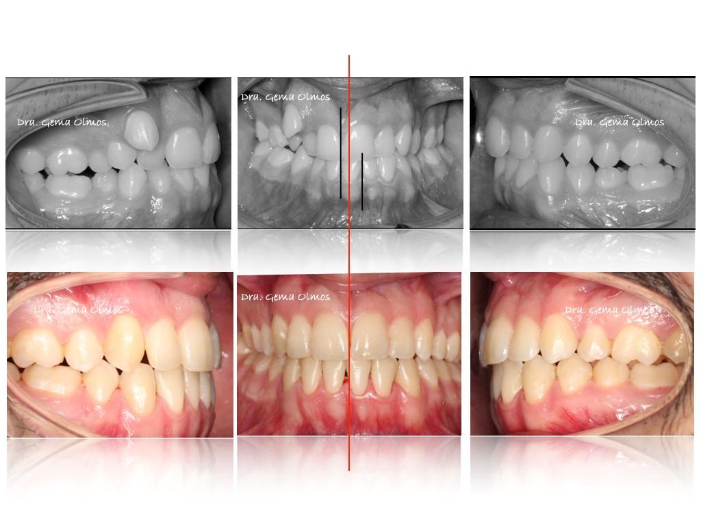 Ortodoncia Lingual Casos reales