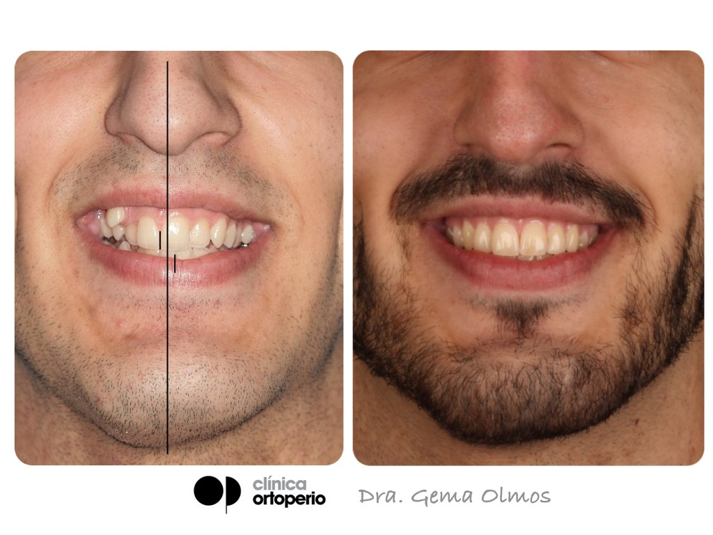 Sonrisa Ortoperio