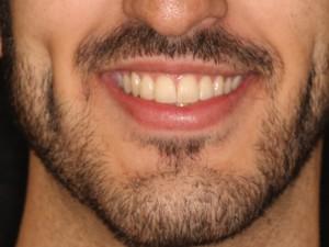 Caso sobre un Tratamiento de Ortodoncia Lingual Resuelto