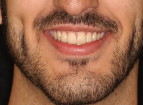 Ortodoncia Lingual Brackets