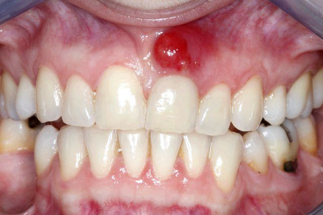 Implantes dentales abceso dental