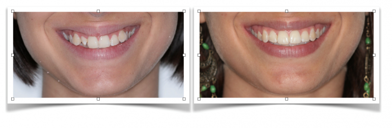 Ortodoncia sin extracciones 1