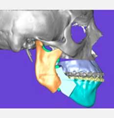 Ortodoncia 7