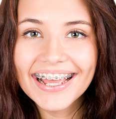 Ortodoncia 4