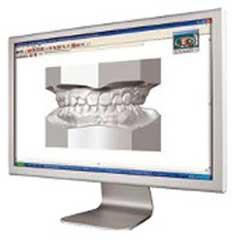 Ortodoncia 6