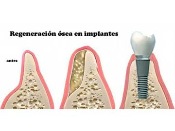 Dental Implants 4