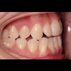 Lingual Orthodontics. Treatment of complex malocclusion class III and open bite in adult patient 3