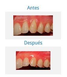 periodontics 1