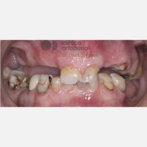 Implantes sin cirugía 1