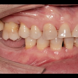 Molar intrusion with micro-implants, without orthodontic appliances 3