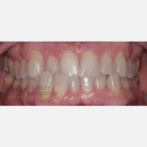 Orthodontics for adults. Lingual Orthodontics. Anterior crossbite and overcrowding 1