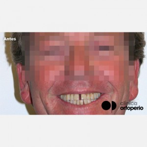 Invisible orthodontics in cases where periodontitis has caused loss of bone tissue 1