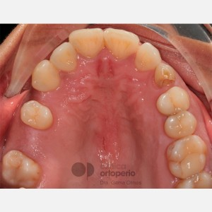 Lingual Orthodontics. Impacted canines. Multidisciplinary case: Orthodontic treatment and Implants 3
