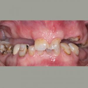 Colocación de implantes dentales sin cirugía 3