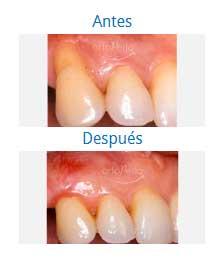 periodontics 10